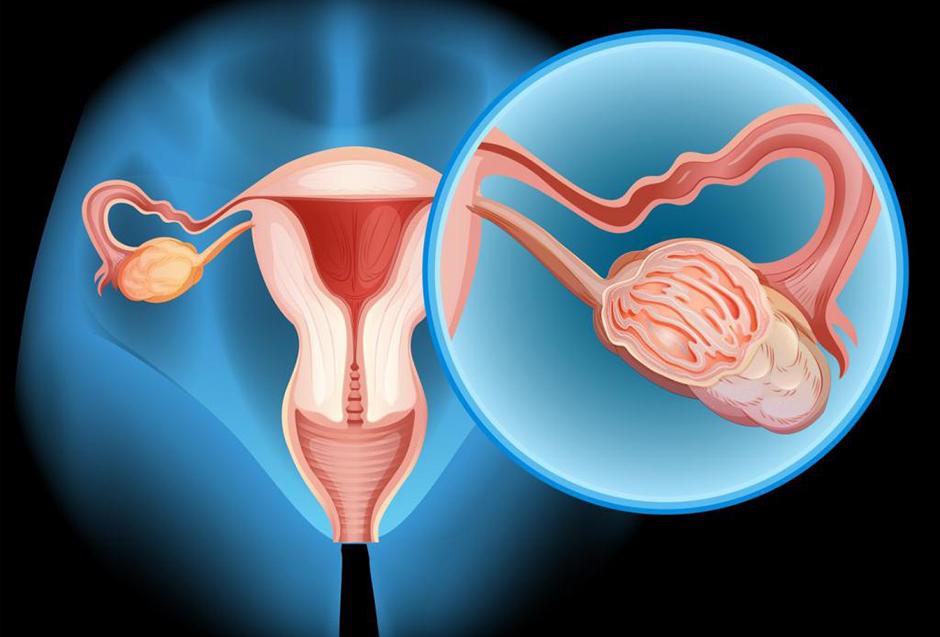 Норма онкомаркера ca 125 у женщин при кисте яичника