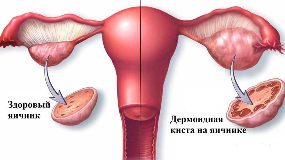 Дермоидная киста яичника