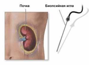 Пункция кисты почки осложнения